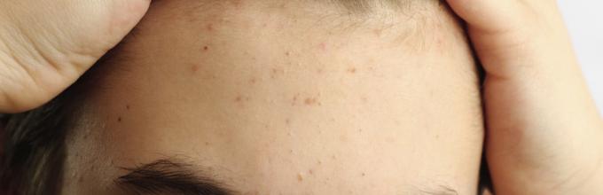 Прыщи на голове в волосах у мужчин лечение