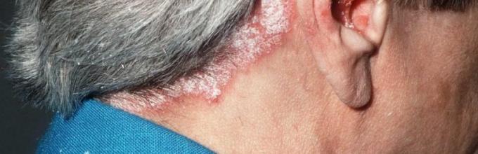 Псориаз на голове лечение фото причины возникновения