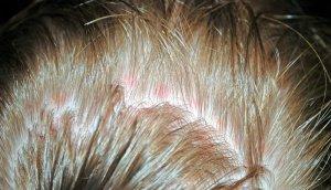 маска из желтка для волос эффект